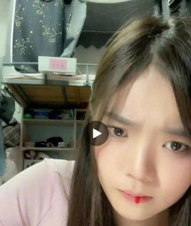 Idol Trung Quốc tiết lộ nguyên nhân ho ra máu trên livestream-1