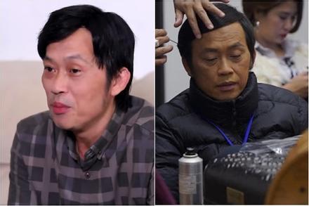 Nghệ sĩ Hoài Linh mặt hốc hác, mắt thâm quầng vì chuỗi scandal