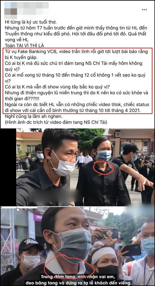 Dân mạng thắc mắc chuyện Hoài Linh phẫu thuật K tuyến giáp-4