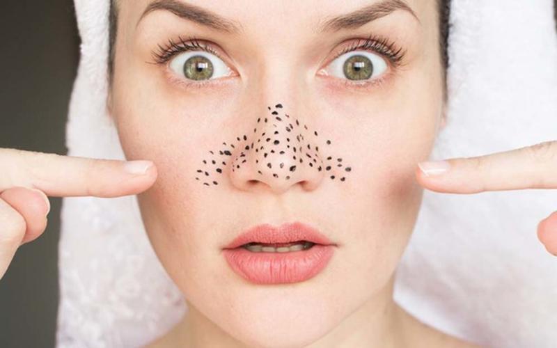 Mụn đầu đen mọc tái mọc hồi ở mũi, đâu là nguyên nhân và cách khắc phục-1