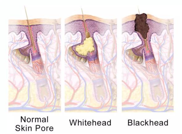 Mụn đầu đen mọc tái mọc hồi ở mũi, đâu là nguyên nhân và cách khắc phục-3