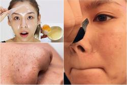 Mụn đầu đen 'mọc tái mọc hồi' ở mũi, đâu là nguyên nhân và cách khắc phục