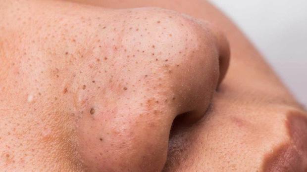 Mụn đầu đen mọc tái mọc hồi ở mũi, đâu là nguyên nhân và cách khắc phục-4