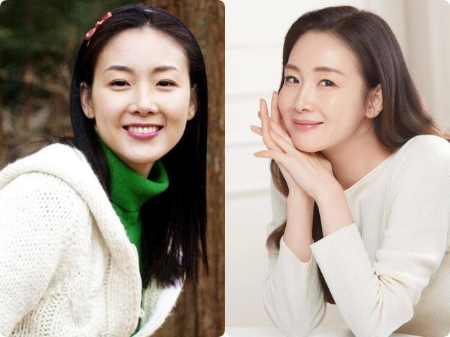 Người đẹp khóc Choi Ji Woo: Từng có giai đoạn mặt sưng phù cứng đơ vì tiêm Botox-2