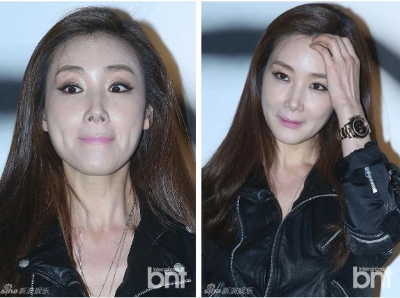 Người đẹp khóc Choi Ji Woo: Từng có giai đoạn mặt sưng phù cứng đơ vì tiêm Botox-6