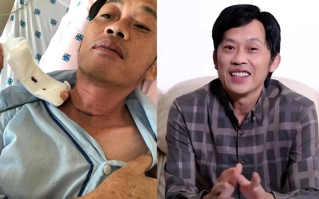 Sao Việt mắc bệnh tuyến giáp: Người được thương, người bị khịa-2