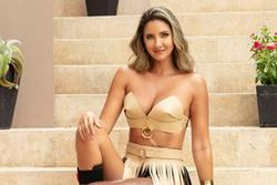 Hoa hậu Colombia sau ca phẫu thuật cưa chân