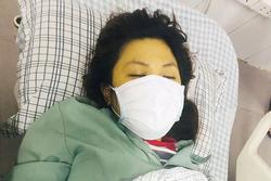 Cô gái 25 tuổi cấp cứu vì lạm dụng paracetamol để điều trị đau đầu liên tục 6 ngày