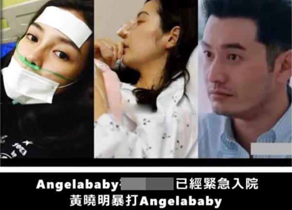 Rộ tin Angela Baby bị Huỳnh Hiểu Minh đánh đập tới mức nhập viện-1
