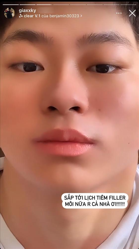 Rich Kid 2K3 Gia Kỳ công khai bơm môi, mê đeo móng giả như phái nữ-3