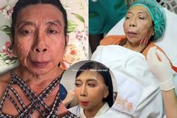 Gương mặt nát bươm hết vía của gái già chuyển giới Thái Lan