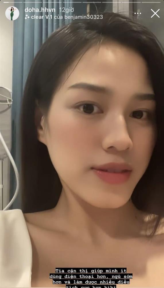 Hoa hậu Đỗ Thị Hà tiếp tục sửa nhẹ một điểm trên gương mặt-1