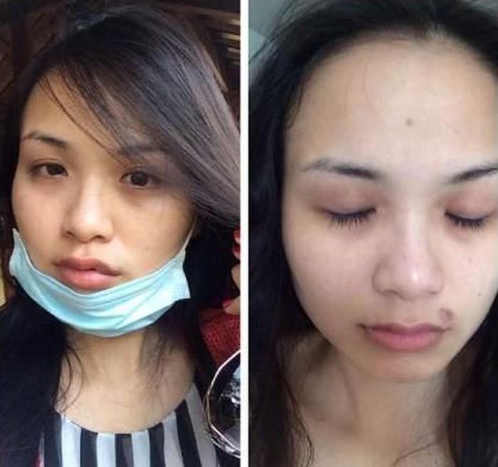 Gương mặt bầm dập của dàn mỹ nhân Việt khi bị đi đường quyền-7