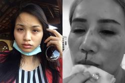Gương mặt bầm dập của dàn mỹ nhân Việt khi bị 'đi đường quyền'