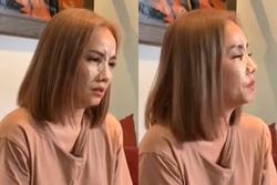 Gương mặt băng bó chằng chịt của Hoàng Yến sau vụ chồng đấm