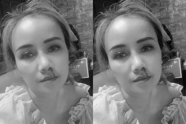 Gương mặt băng bó chằng chịt của Hoàng Yến sau vụ chồng đấm-6