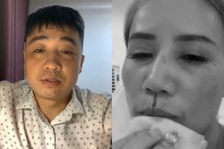 HOT: Chồng cũ xin lỗi vì đấm Hoàng Yến, kể chuyện vợ ngoại tình