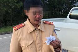 Bắt giam thanh niên trốn khai báo y tế, đánh 2 CSGT bị thương