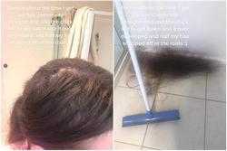 Cô gái rụng nửa bộ tóc vì đang duỗi ép dở mà thợ bận ăn trưa