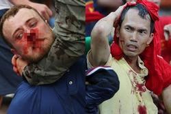 Cổ động viên đổ máu xem chung kết Euro