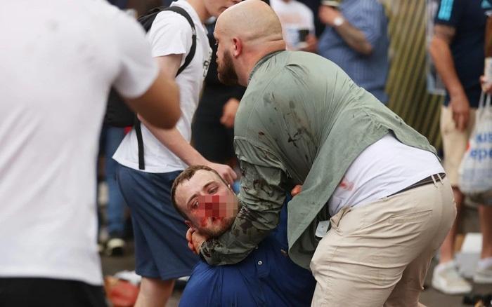 Cổ động viên đổ máu xem chung kết Euro-2