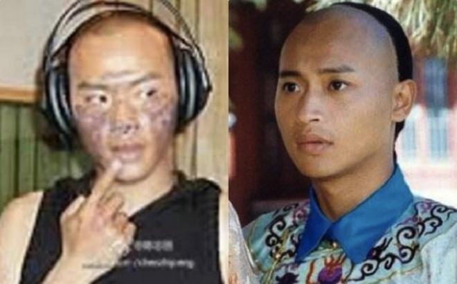 Trần Chí Bằng bị bỏng nặng phải dừng đóng phim, sống chật vật ở tuổi xế chiều-2