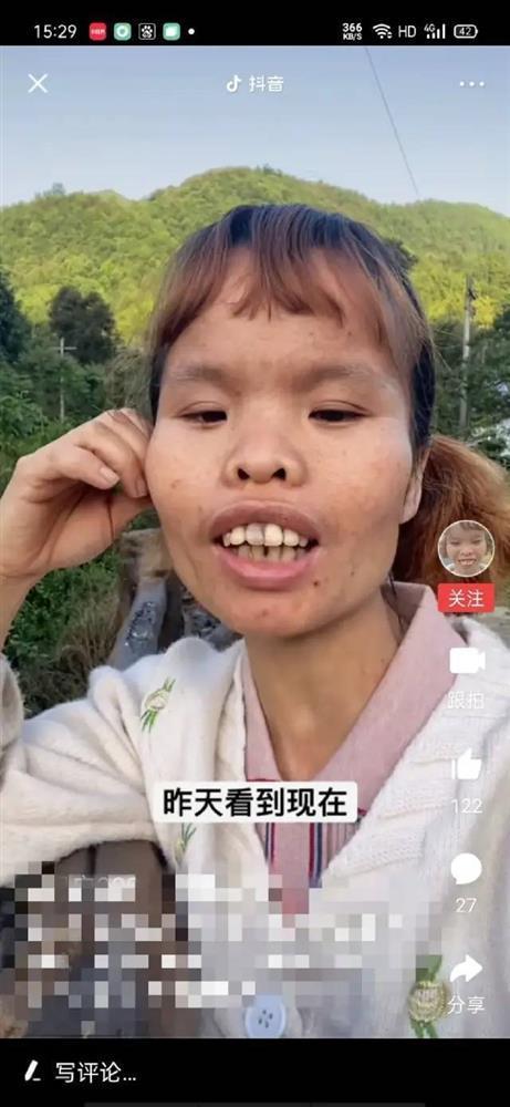 Người phụ nữ xấu nhất Tiktok giàu kếch xù, nhìn chồng và con gái mới kinh ngạc-2