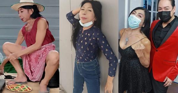 Gương mặt nhàu của gái già chuyển giới có thật sự được cải thiện?-4