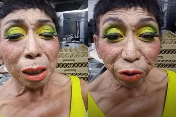Gương mặt nhàu của gái già chuyển giới có thật sự được cải thiện?-2