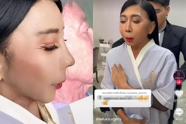 Gương mặt nhàu của gái già chuyển giới có thật sự được cải thiện?-1