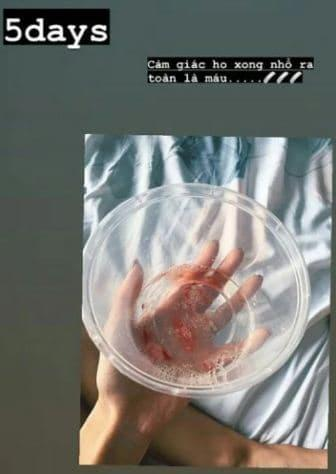 Khả Ngân tiết lộ 2 tay chằng chịt kim tiêm, sút cân trầm trọng, ho ra máu-2