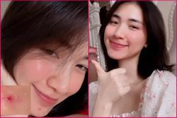 Hòa Minzy nổi mụn thê thảm sau khi triệt lông mặt
