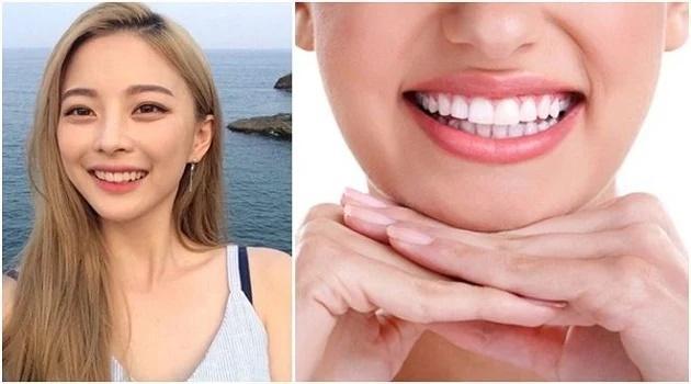 Nhìn tướng răng đoán mức độ giàu có, thành công của phụ nữ-1