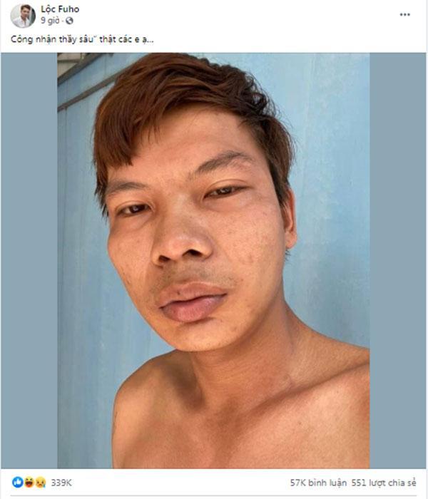 Bị chê xấu hơn vợ, Lộc Fuho phản ứng gắt hút 11k like-3