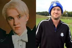 Không nhận ra Tom Felton 'Harry Potter': 34 tuổi mà già xọm như U50