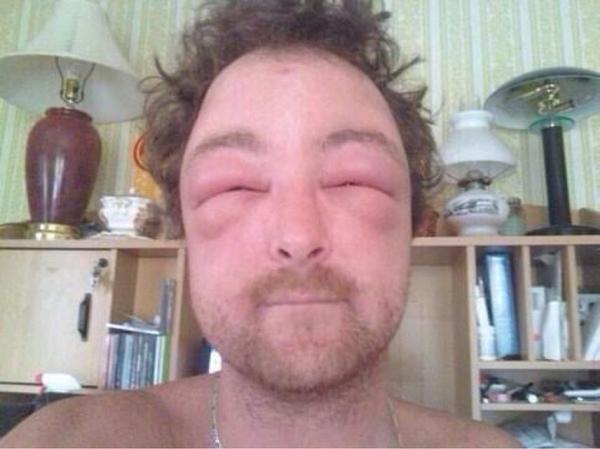 Cạn lời với những khuôn mặt đáng thương bị ong đốt túi bụi-3