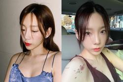 Taeyeon SNSD bật mí cách sở hữu làm da như 'em bé' ở tuổi 32