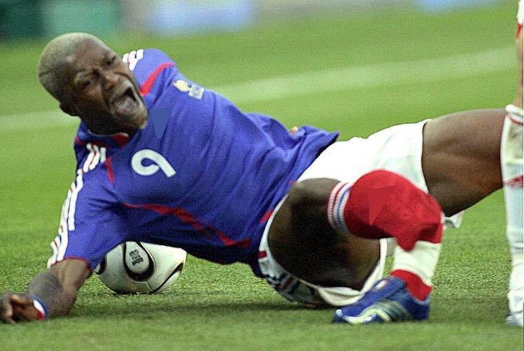 Tai nạn bóng đá: Chân tay biến dạng, xương đâm ra khỏi thịt-3