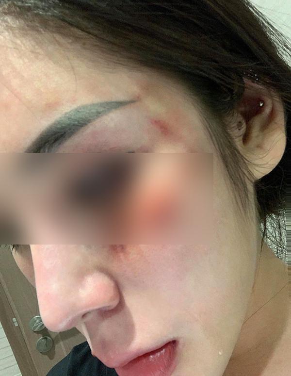Hotgirl nổi tiếng tố bị bạn trai đánh đập dã man, thương tật 28%-1