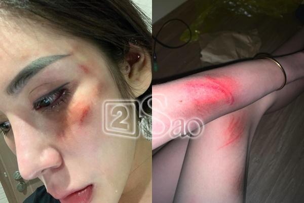 Vụ hot girl bị đánh đập: Đáng sợ phản ứng từ chồng sắp cưới-3