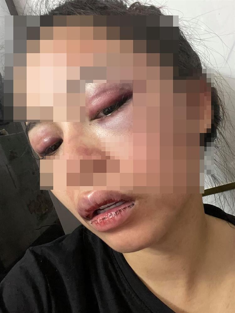 Vợ 9X bị chồng bạo hành, dùng gậy sắt đánh biến dạng mặt-2