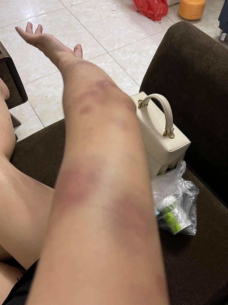 Vợ 9X bị chồng bạo hành, dùng gậy sắt đánh biến dạng mặt-4