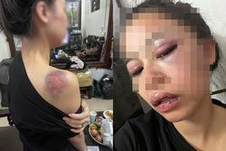 Vụ vợ bị chồng bạo hành xuyên đêm: 'Em đau đến tuyệt vọng'