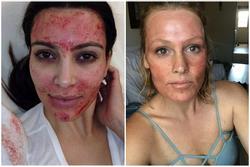 Sao nữ dưỡng da bằng máu người, giờ run sợ vì nguy cơ nhiễm HIV