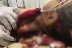 SỐC: Bé trai 8 tuổi tử vong trên vũng máu, người nhiều vết chém