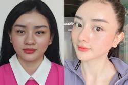 Phản ứng chồng tỷ phú khi Angela Chu đòi dao kéo
